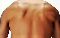 息 を 吸う と 背中 が 痛い 左上